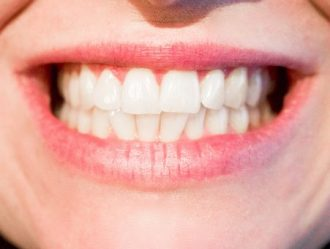 Jaka cena za implant zęba we Wrocławiu?